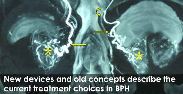 BPH-VI