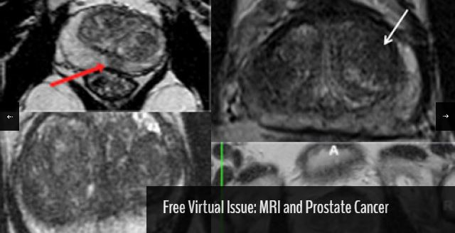 mri-and-prostate-cancer