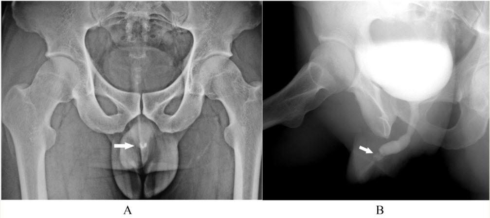Osseous Metaplasia in Anterior Urethra - BJUI