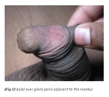 penis trauma