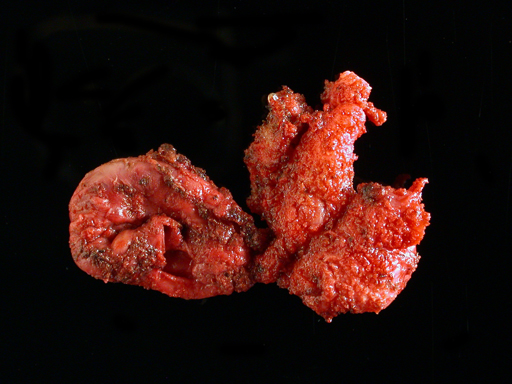 Fig-2.-Gross-SV-remnants-specimen_sm