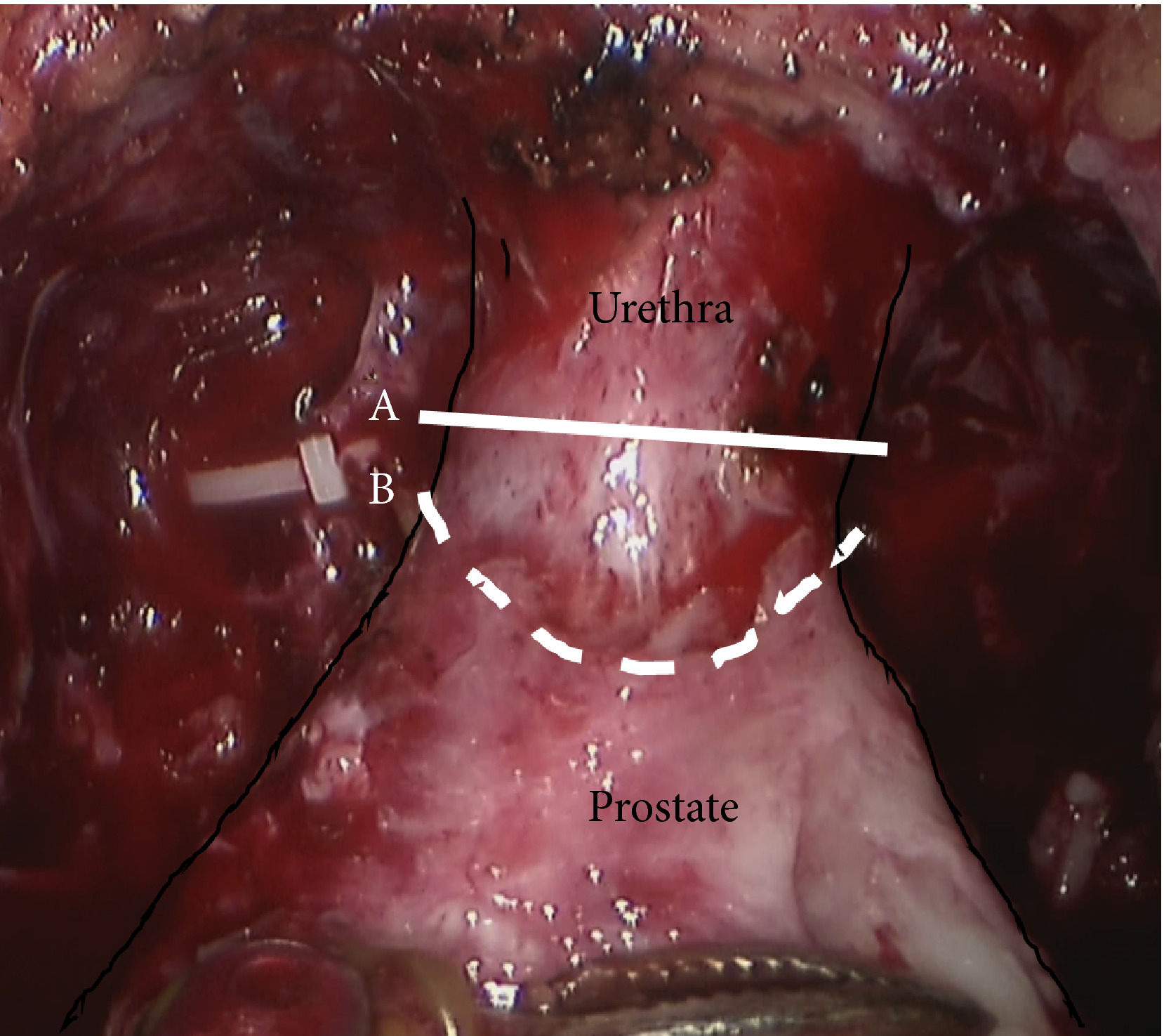 Article Of The Week Effectiveness Of A Longer Urethral Stump To Prevent Urinary Incontinence After Radical Prostatectomy Bjui